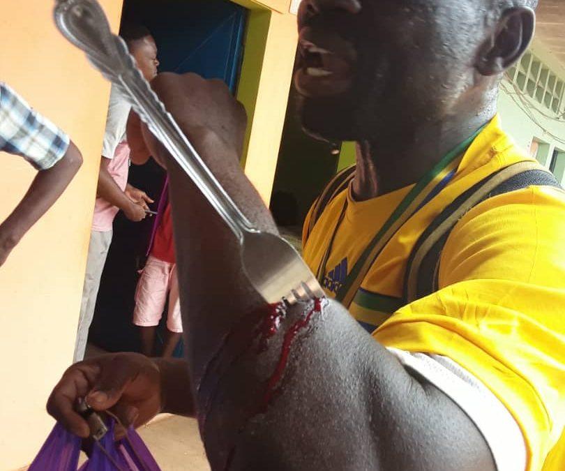 Gabon : un homme sauvagement agressé à la fourchette à Mouila